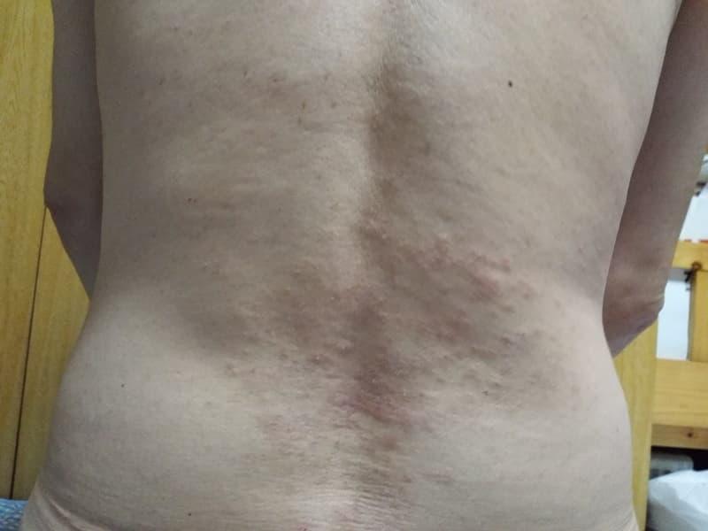 炭水化物ダイエット,糖質制限,中性脂肪,痒み,画像2